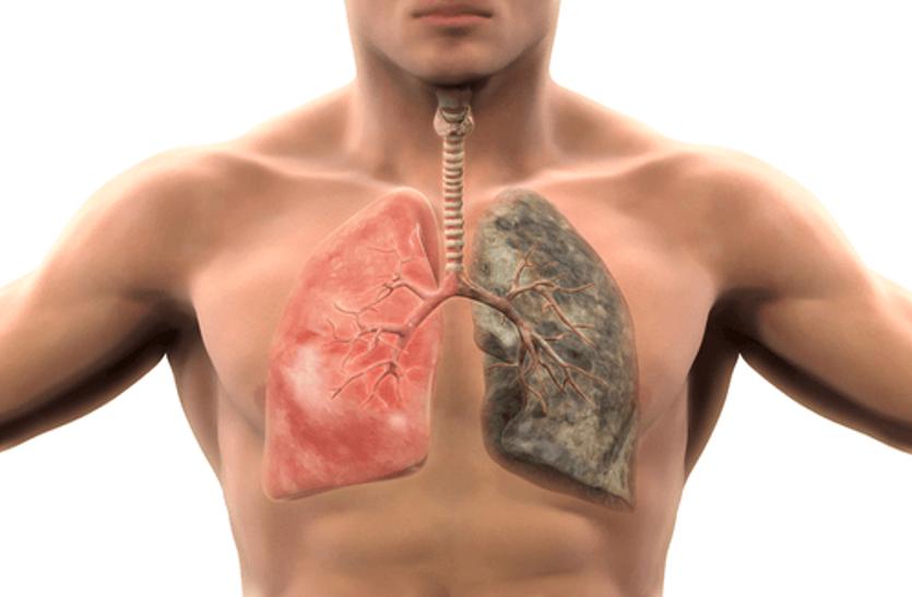 फेफड़ों का कैंसर फेफड़ों से शुरू होता है और अन्य शरीर के अंगों में फैलता है।