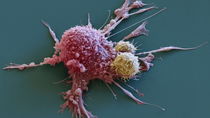 Every patient of cancer will be able to recover from T-cell therapy