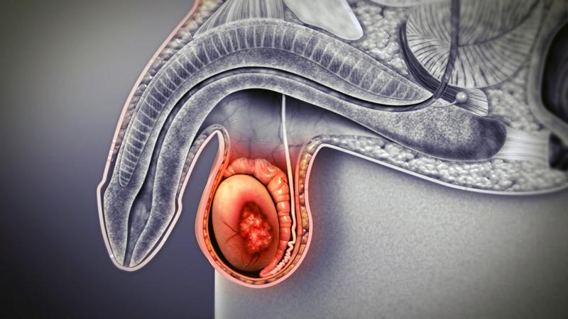 टेस्टिकुलर कैंसर (अंडकोश)का पता लगाने का सबसे आसान तरीका है .