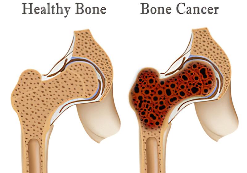 बोन कैंसर क्या है ? इसके लक्षण व् इलाज । बोन कैंसर से कैसे बचा जा सकता है ?