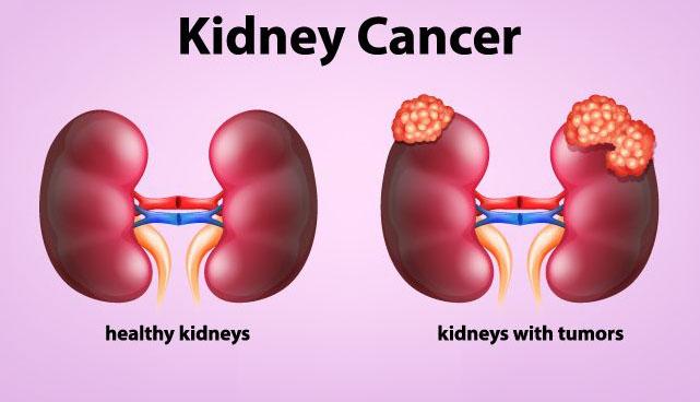 किडनी कैंसर के लक्षण kidney cancer k lakshan